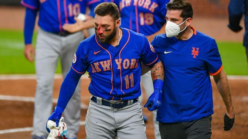 Mets Kevin Pillar suffered multiple nose fractures