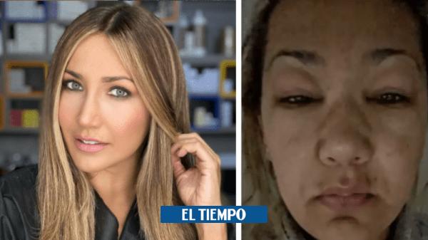 Adriana Betancur former host of RCN needs a new transplant