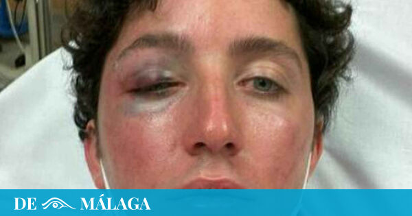 1629818512 Little Nicolas suffers a serious attack after a concert in