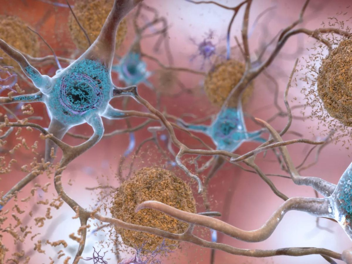 Photo: Beta-amyloid plaques and tau in the brain (NIA)